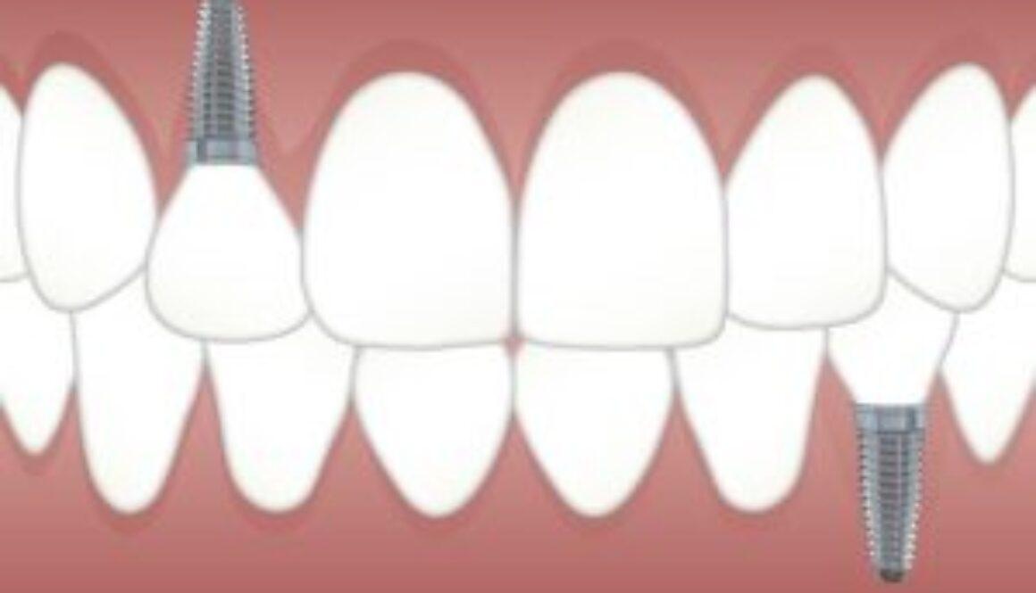 teeth-3597679_640